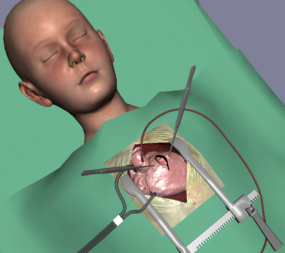 Cardiac surgery simulation